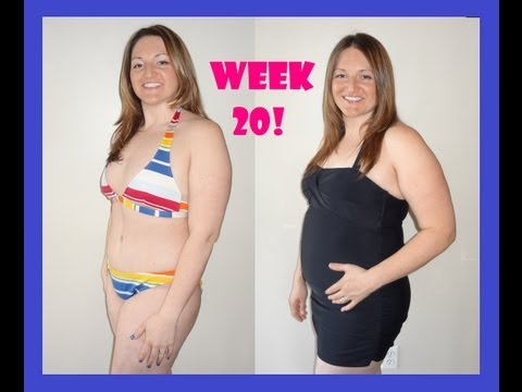Pregnant after Tummy Tuck (Lower Body Lift) at 20 weeks / 5 months
