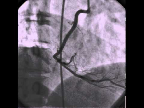 Spontanous  dissection and clot of Right Coronary artery, Successful RCA PCI.