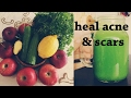 delicious green juice: helps heal acne scars! | holisticmaya
