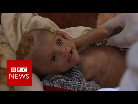Yemen s war leaves children on the brink of famine - BBC News