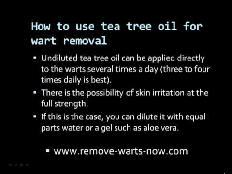 Tea Tree Oil Warts Removal
