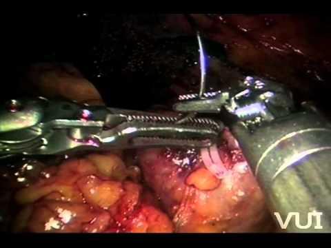 Robotic partial nephrectomy-Vloc renorrhaphy