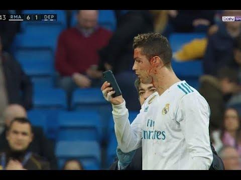 Real Madrid Vs Deportivo L.C (7-1) All Goals & Highlights, 21/01/2018 LIGA