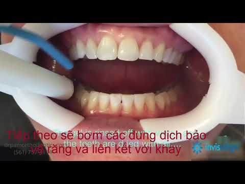 Invisalign Việt Nam - Các bước niềng răng không mắc cài Invisalign