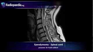 Spinal Ependymoma - Radiology Video Tutorial (MRI)
