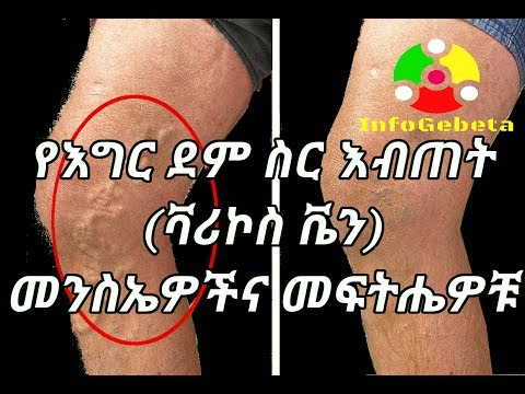 Ethiopia varicose vein problem and remedy