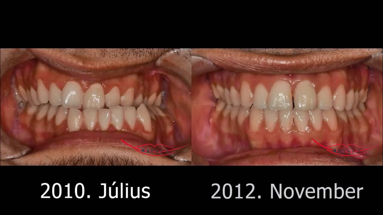 Állcsont-aszimmetria sebészi-fogszabályozó megoldása