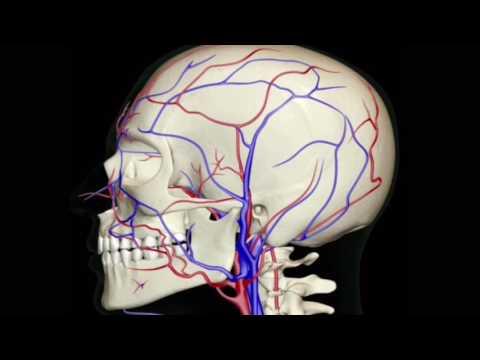 Migräne, Kopfschmerz und Schwindel - Ursache eine unbemerkte Atlasfehlstellung