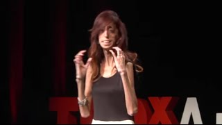 How do you define yourself? Lizzie Velasquez at TEDxAustinWomen