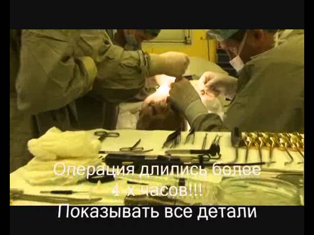 Пластика лица, отзыв пациентки. Хирург Якимец В.Г.