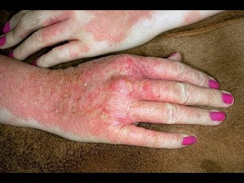 how to get rid of vesicular eczema