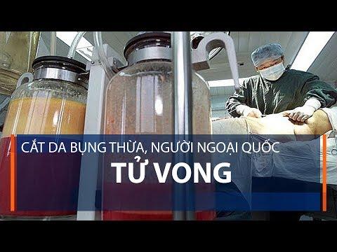 Cắt da bụng thừa, người ngoại quốc tử vong | VTC1 - Thời lượng: 68 giây.