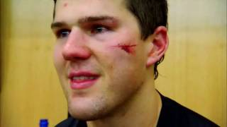 Ben Lovejoy takes a puck to face (Pittsburgh Penguins)