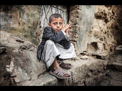 الجوع ينهش أطفال اليمن ووفاة كل 10 دقائق