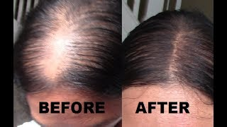 Video $4 MAKEUP: HOW TO GET A SCALP LINE OR NATURAL PART FOR THIN HAIR MP3, 3GP, MP4, WEBM, AVI, FLV Februari 2019