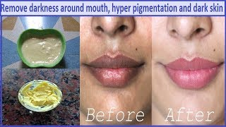 Remove Darkness, Patches Around Mouth in 10 Minutes (100% गारंटी & effective Home Remedy)