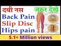 Back Pain, दवी हुए नस, Slip Disc, Hips Pain का जड़ से सफल इलाज़   सालो साल पुराना कमर दर्द