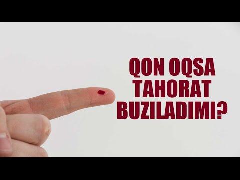 """, title : 'Savol-javob: """"Qon oqsa tahorat buziladimi?"""" (Shayx Sodiq Samarqandiy)'"""