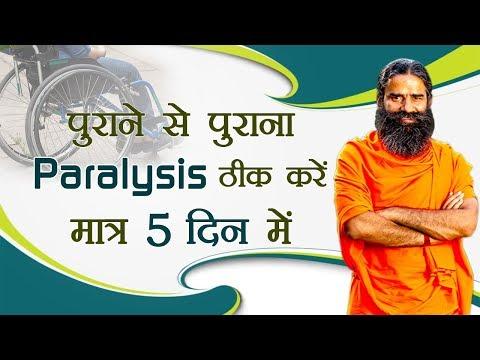 पुराने से पुराना Paralysis ठीक करें मात्र 5 दिन में | Swami Ramdev