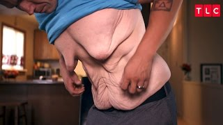 After Losing Over 300 Pounds, This Man's Physique Is Hidden By Excess Skin
