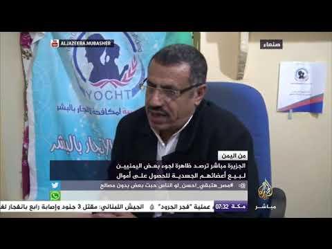 شاهد.. من اليمن.. ظاهرة لجوء بعض اليمنيين لبيع أعضائهم الجسدية للحصول على أموال
