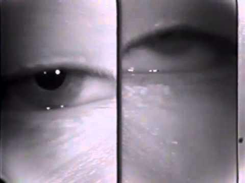 Ocular Myasthenia - Tensilon Test