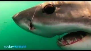 Video Shark Attack Survivor  - Part 1, 2, 3 MP3, 3GP, MP4, WEBM, AVI, FLV Juli 2019