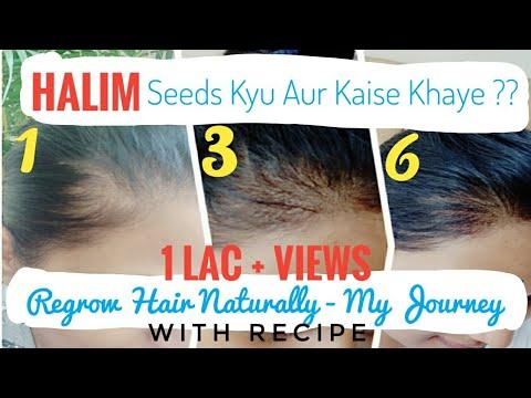 My Hair Regrowth Journey - Eating Halim Seeds for 6 months +   Hair Regrowth Tip By Rujuta Diwekar
