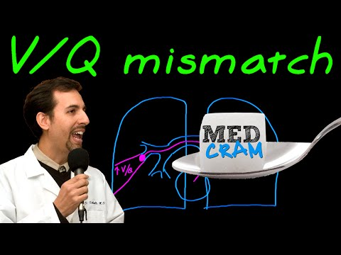 Ventilation Perfusion (VQ) Mismatch Explained Clearly by MedCram.com