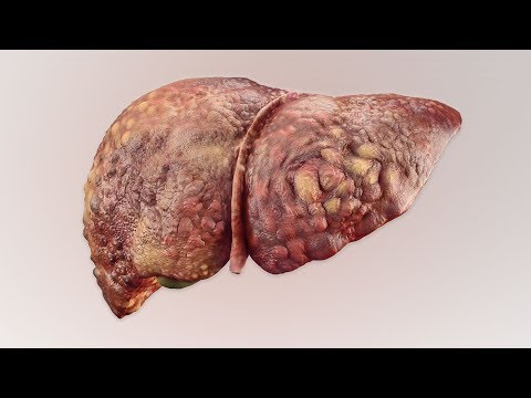 A Man Drank 3 Liters Rum Everyday Since Age 13. This is What Happened To His Liver.