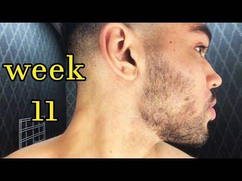 Beard oil - My Minoxidil Beard Journey :  Week 11    Filling Out