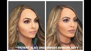 Video Chin Implants 101: What You Need to Know MP3, 3GP, MP4, WEBM, AVI, FLV Agustus 2018