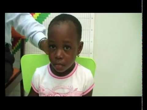 Pädiatrie: Klinische Prüfungen - CNS Examination of Facial Nerve and Hearing