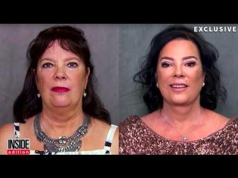 KRIS JENNER's Sister's AWAKE FACELIFT by the Best Facelift Plastic Surgeon in Beverly Hills