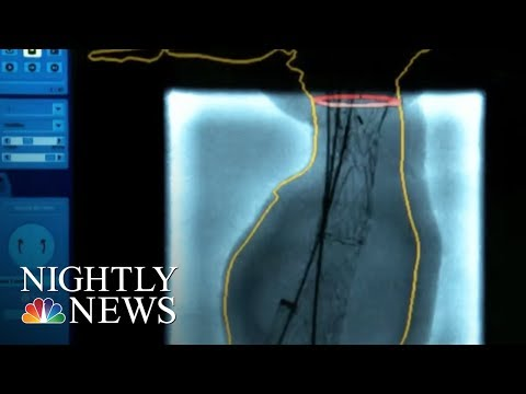 New hope for those with 'ticking time bomb' aneurysms | NBC Nightly News