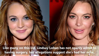 13 of the most drastic celebrity plastic surgeries