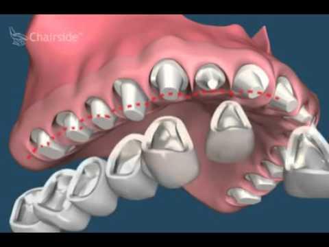 Решение проблемы стираемости зубов и потери красивой улыбки