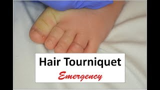 This video demonstrates the management of a hair tourniquet on a digit.  It is impressive how deeply buried the hair tourniquet can go making access and physical removal almost impossible.  The important teaching point is that an incision must be made through the tourniquet that reaches the bone.  This will insure that the tourniquet has been released. At least two such incisions avoiding neurovascular tissues may be indicated.