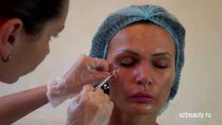 Ботокс (botox), выполняем инъекции ботокса в три зоны: лоб, между бровей, вокруг глаз