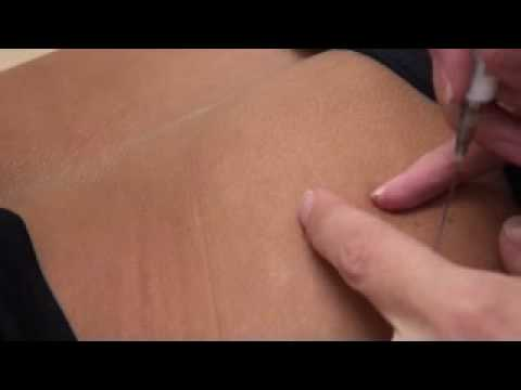 injection bum - That time again when Lisa Lewis is required to get her inject able contraceptive (birth control depo provera) in her bum. Join Lisa in her daily video diary ...