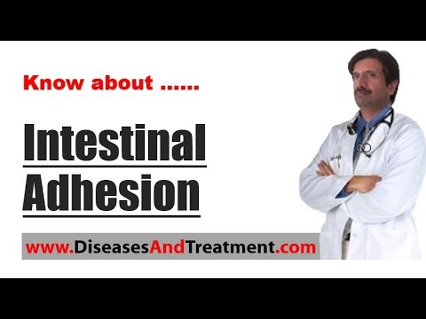 Intestinal Adhesion (Abdominal Adhesions) : Causes, Symptoms, Diagnosis, Treatment, Prevention
