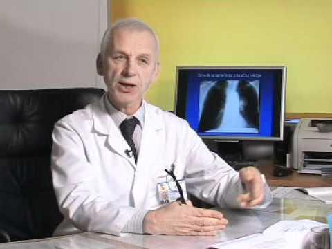 Plaučių vėžio gydymo galimybės