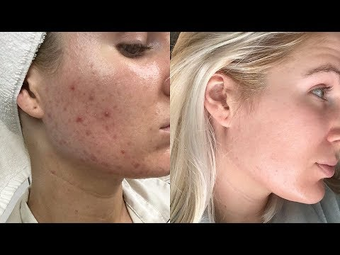 HOW I CLEARED MY ACNE | MY SKINCARE ROUTINE