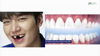 7 Bước cơ bản không thể thiếu khi cấy ghép răng Iplant chuyên sâu