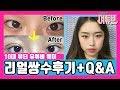 여고생 쌍수 리얼 후기 - 고딩 유튜버 웨이 매몰 쌍커풀 수술 후기 | High School Student Double Eyelid Surgery Before After