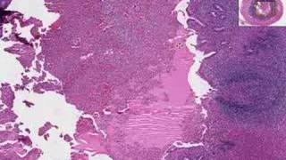 Histopathology Acute Appendicitis