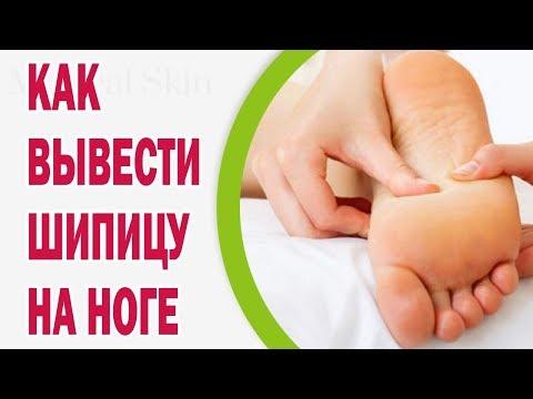 Как вывести шипицу на ноге навсегда