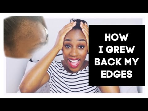 How I Grew Back My BALD Edges!! (видео)
