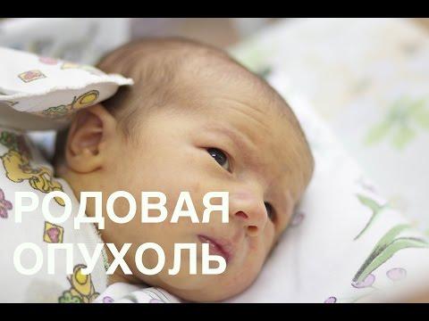 Родовая опухоль и формы черепа - Часть 1 || ОВП