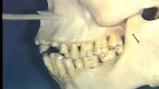 Gross Anatomy: Nerve Supply To Teeth; Maxillary Sinus